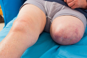 Die vorsätzliche schwere Körperverletzung kann bei Absicht und direktem Vorsatz noch strenger geahndet werden.